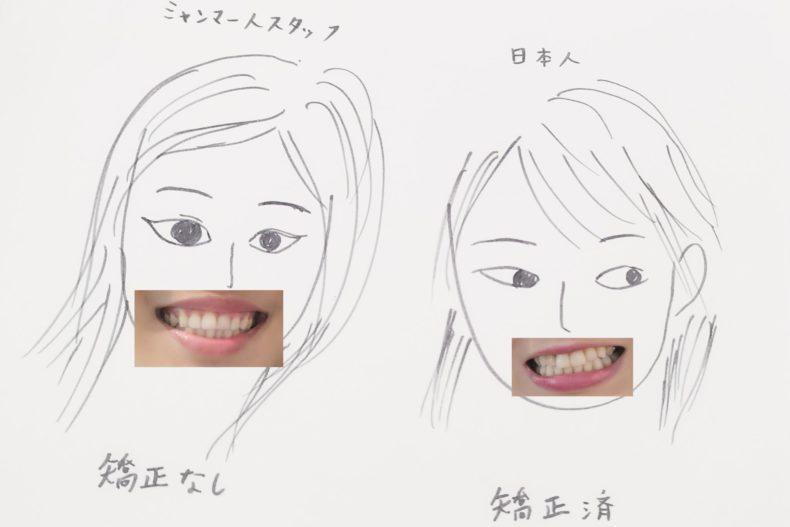 ミャンマー人(歯列矯正なし)と日本人(歯列矯正済)の歯並びの比較